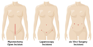 da-vinci_myomectomy_fibroid_removal_incision_comparison